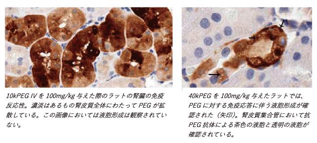 図2. PEGが代謝されないことによる悪影響の例