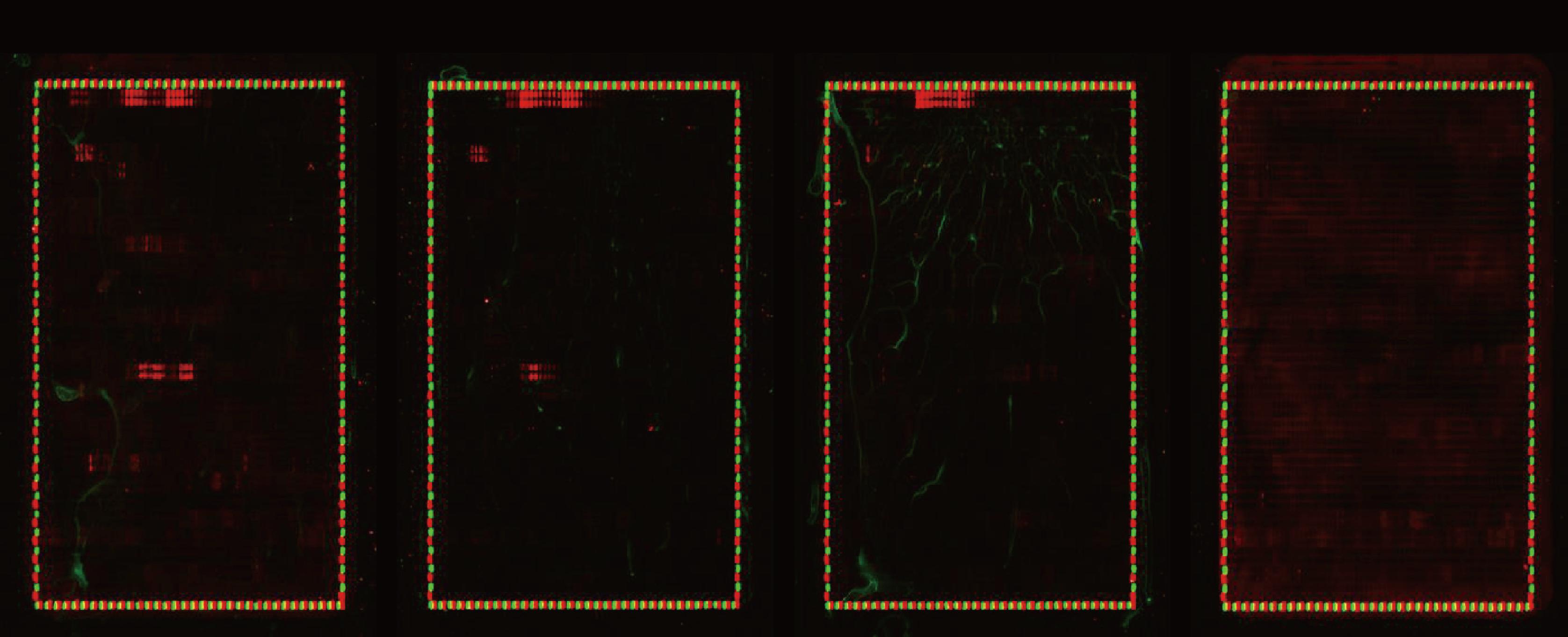 図1. ペプチドアレイはSSc1、SSc2、SSc3およびHC血清と1:5,000の希釈率でアッセイされました